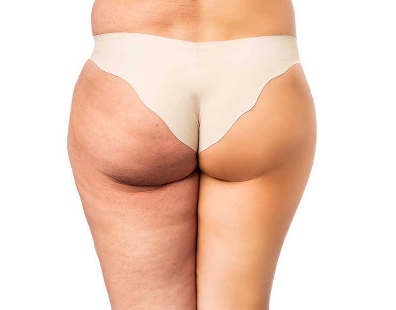 Cellulit - jak opanować problem znienawidzonej skórki pomarańczowej?